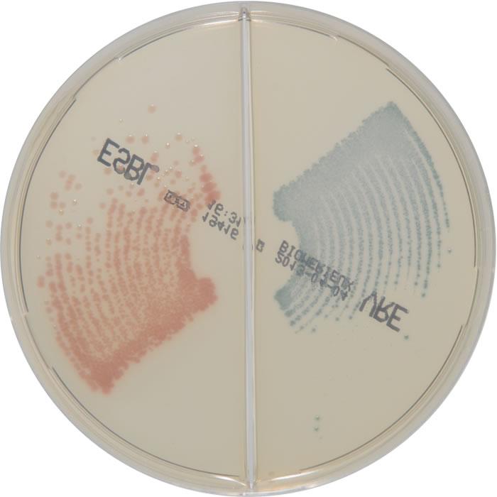 E. coli E. faecalis