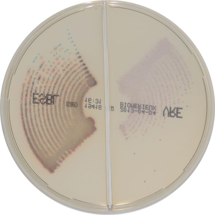 E. coli E. faecium