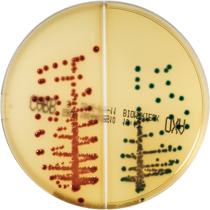 E.coli KPC-  K.pneumoniae OXA-48