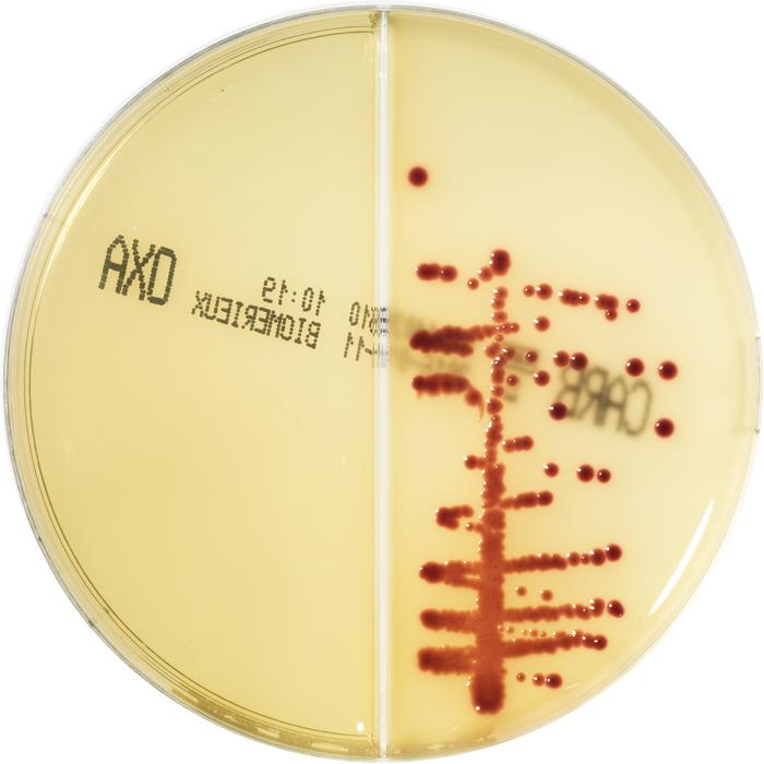 E.coli KPC