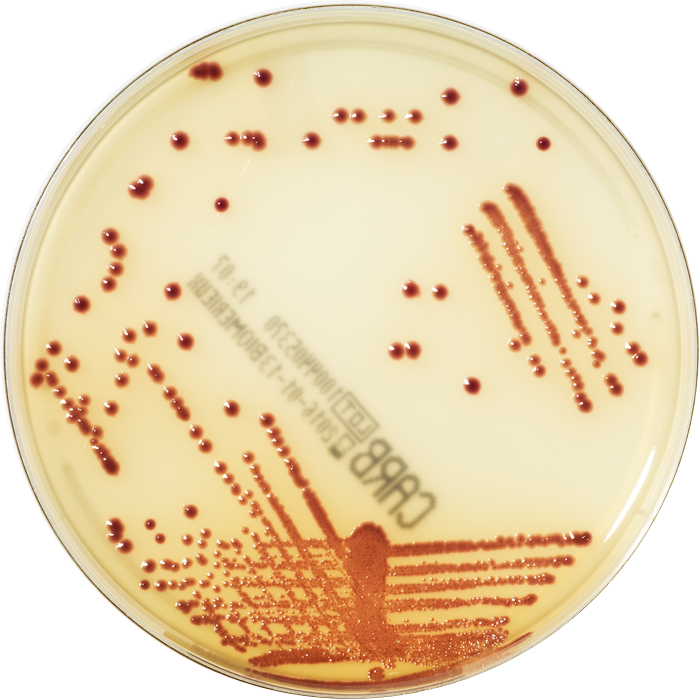 E. coli BAA(2452)