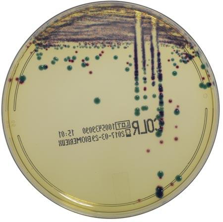 Klebsiella pneumoniae CCUG 59348 E.coli NCTC13846